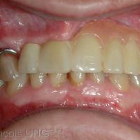 Fig 32 : Patient présentant une prothèse amovible sub-totale