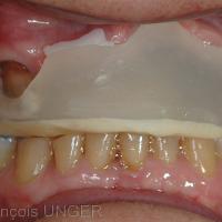 Fig 34 : La gouttière a été réalisée au maxillaire et prend appui sur toutes les surfaces disponibles, dentaires et fibromuqueuses.