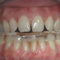 Fig 6 : La gouttière permet de rétablir une position mandibulaire non déviée par l'occlusion