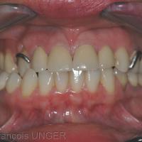 Fig 7 : Autre cas d'occlusion inversée, avec prothèse amovible partielle au maxillaire