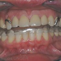 Fig 8 : La gouttière est réalisée à la mandibule