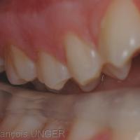 Fig. 13 : Inocclusion complète coté contro-latéral