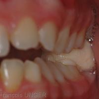 Fig. 3 : Pour élaborer la butée postérieure d'urgence une petite boulette de résine autopolymérisable est placée sur la dent la plus distale de l'arcade, du coté de la luxation. Le patient ne doit pas fermer lui même la bouche; c'est le praticien qui guide délicatement la mandibule vers sa position détendue. Dans cette position le praticien élève la mandibule pour inscrire des indentations profondes dans la résine, mais sans que s'établisse le moindre contact entre les dents.