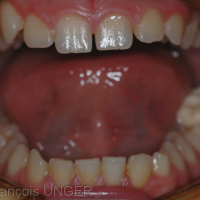 Fig. 9 : Il est vérifié que le patient peut ouvrir et fermer sa bouche sans difficulté et en particulier retrouver facilement les indentations de la butée. L'ouverture buccale est très souvent augmentée dès la mise en place de la butée.