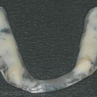 Fig. 6 : Modification de l'orthèse pour rétablir centrage et calage en ORC