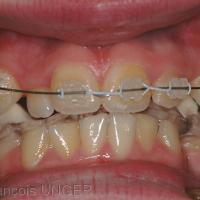 Fig. 7 : Orthèse modifiée vue de face