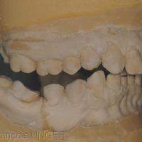 Fig. 12 : Confort mandibulaire. Sur moulages, situation interarcades orthèse déposée; coté droit