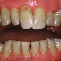 vue endobuccale : on note la présence de tartre et de récessions gingivales. L'examen clinique ne révèle pas la présence de poches parodontales ni de mobilités dentaires pathologiques concernant les 6 dents antérieures maxillaire et mandibulaire