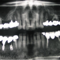 L'examen radiologique montre que de nombreuses dents postérieures semblent perdues, à l'exception du secteur 3