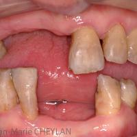 Fig1 : Vue initiale endo-buccale. Les dents sont fortement colorées par l'effet des tétracyclines.