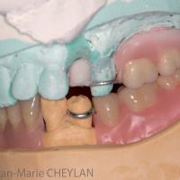 Fig 10 : Montage directeur maxillaire et montage sur cire mandibulaire : vues occlusale et latérales.