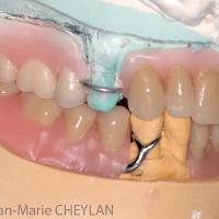 Fig 12 : Montage directeur maxillaire et montage sur cire mandibulaire : vues occlusale et latérales.