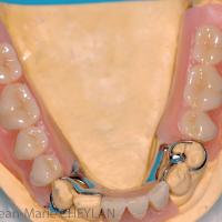 Fig 13 : Montage directeur maxillaire et montage sur cire mandibulaire : vues occlusale et latérales.