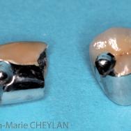 Fig 3 : Couronnes céramo-métalliques fraisées sur 14 et 25.