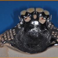 Fig 10 : Extrados du châssis métallique sur le modèle avant montage des dents prothétiques et avant mise en place des glissières
