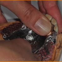 Fig 12 : le châssis est aménager pour qu'il permettent d'enregistrer le rapport maxillo-mandibulaire prothèses en place