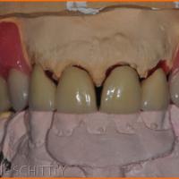 Fig 15 : Prothèses sur le modèle vues de face