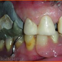 Fig 1: Enregistrement de la DVO et du rapport maxillo-mandibulaire. Les prothèses transitoires fixent la DVO