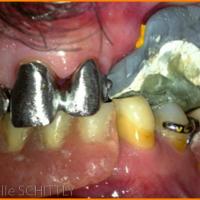 Fig 6 : Essai clinique des armatures métalliques des prothèses fixées et contrôle du rapport maxillo-mandibulaire