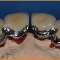 Fig 7 : La prothèse fixée est réalisée en deux blocs respectant le diastème du patient. Elles présentent des fraisages palatins et des attachements distaux de type glissière. (vue palatine)