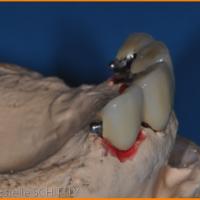 Fig 8 : Vue latérale des prothèses fixées