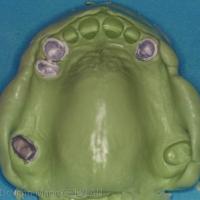 Fig. 2 L'empreinte est réalisée à l'aide d'un élastomère vinylpolysiloxane de moyenne viscosité