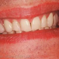 Fig. 8 : sourire du patient