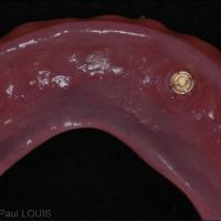 Fig 11 : les parties femelles positionnées à la résine auto-polymérisable dans l'intrados prothétique.