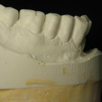 Fig 10b : Arcade mandibulaire adaptée à la PAC maxillaire antagoniste.