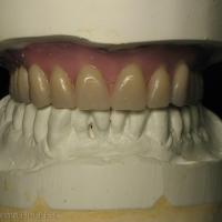 Fig 10 c : Arcade mandibulaire adaptée à la PAC maxillaire antagoniste.