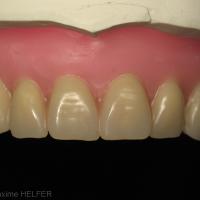 Fig 11c : Empreinte secondaire maxillaire et montage directeur; noter le choix des dents aux dimensions importantes en accord avec les dents mandibulaires et l'absence des deuxièmes molaires.