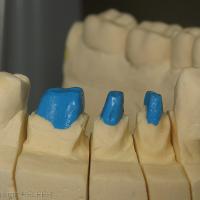 Fig 12c : Empreinte mandibulaire réalisée à l'aide de silicone par addition et préparation des MPU sur le maître modèle.