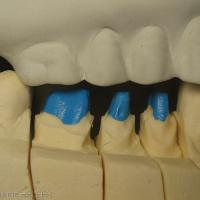 Fig 13a : Modèle en plâtre issu du montage maxillaire et visualisation des RIM. Réalisation au laboratoire des restaurations céramo-métalliques unitaires sur 44,45,46