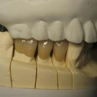Fig 13b : Modèle en plâtre issu du montage maxillaire et visualisation des RIM. Réalisation au laboratoire des restaurations céramo-métalliques unitaires sur 44,45,46