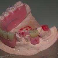 Fig 2a : Réalisation de plasties sur modèle d'étude...