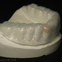 Fig 3c : Le wax-up est reporté en bouche en résine composite à l'aide d'une gouttière thermoformée transparente.