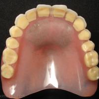 Fig 8 : Vue de l'ancienne prothèse complète maxillaire; fractures à répétition malgré le renfort métallique