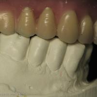 Fig 9b : Arcade mandibulaire après les céraplasties sur 43,44,45,46