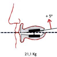 Fig 1 : Variations des forces occlusales selon l'orientation du plan d'occlusion (d'après Olivier HUE (4))