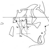 Fig 4 : Méthode téléradiographique de construction du point Xi