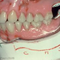 Fig 2 : Orientation postérieure trop basse du plan d'occlusion prothétique