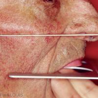 Fig 3 : Recherche du plan occlusal maxillaire parallèle au plan de CAMPER