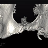 Fig.1 et 2 : Le scanner confirme la forte résorption osseuse du maxillaire et son atrophie.