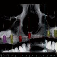 Fig.3a à 3c : Planification des implants sur le logiciel Simplant® après sinus lift bilatéral.