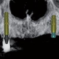 Fig. 2a : Planification dans Simplant®. Six implants Axiom Px (Anthogyr®) sont planifiés sur l'ensemble de l'arcade maxillaire.