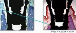 Fig. 4 : Amélioration du niveau marginal de contact os-implant en implantation simultanée des alvéoles et comblement