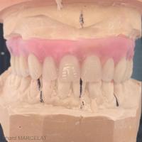 Fig. 2 : Maquette esthético- fonctionnelle en cire avec dents du commerce.