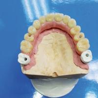 Fig 4b : Montage des dents Pala Premium, finition en cire après repositionnement des coiffes en zircone.