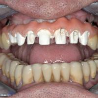 Fig. 7a : Mise en bouche de l'armature et scellement des dents antérieures.