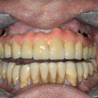 Fig. 7b : Mise en bouche de l'armature et scellement des dents antérieures.